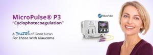 MicroPulse P3 Cyclophotocoagulation fo Glaucoma