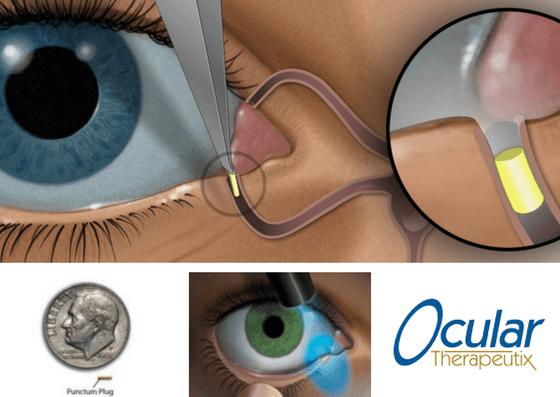 Ocular Therapeutix - Travoprost Plug