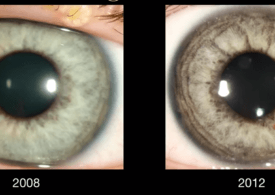 Pigment dust on the surface iris